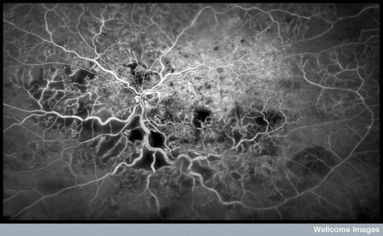N0037724 Central Retinal Vein Occlusion